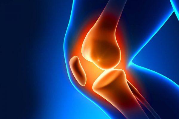 Artrite do joelho